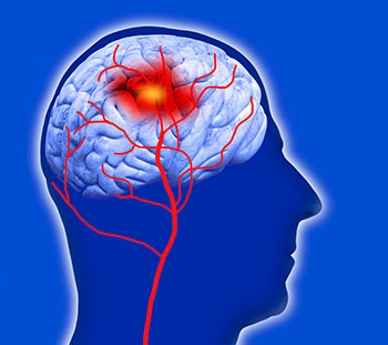 May is National Stroke Awareness Month, and with 795,000 people suffering from a stroke each year in the United States, it is important to understand what a stroke truly is, what to do when it happens, and how to help prevent it.