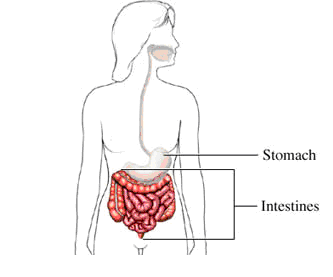 Gastroparesis-stomach.png