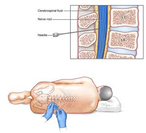 Venereal Disease Research Laboratory Test Vdrl Of The Cerebrospinal Fluid Csf Is