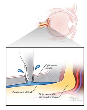 optic nerve sheath fenestration