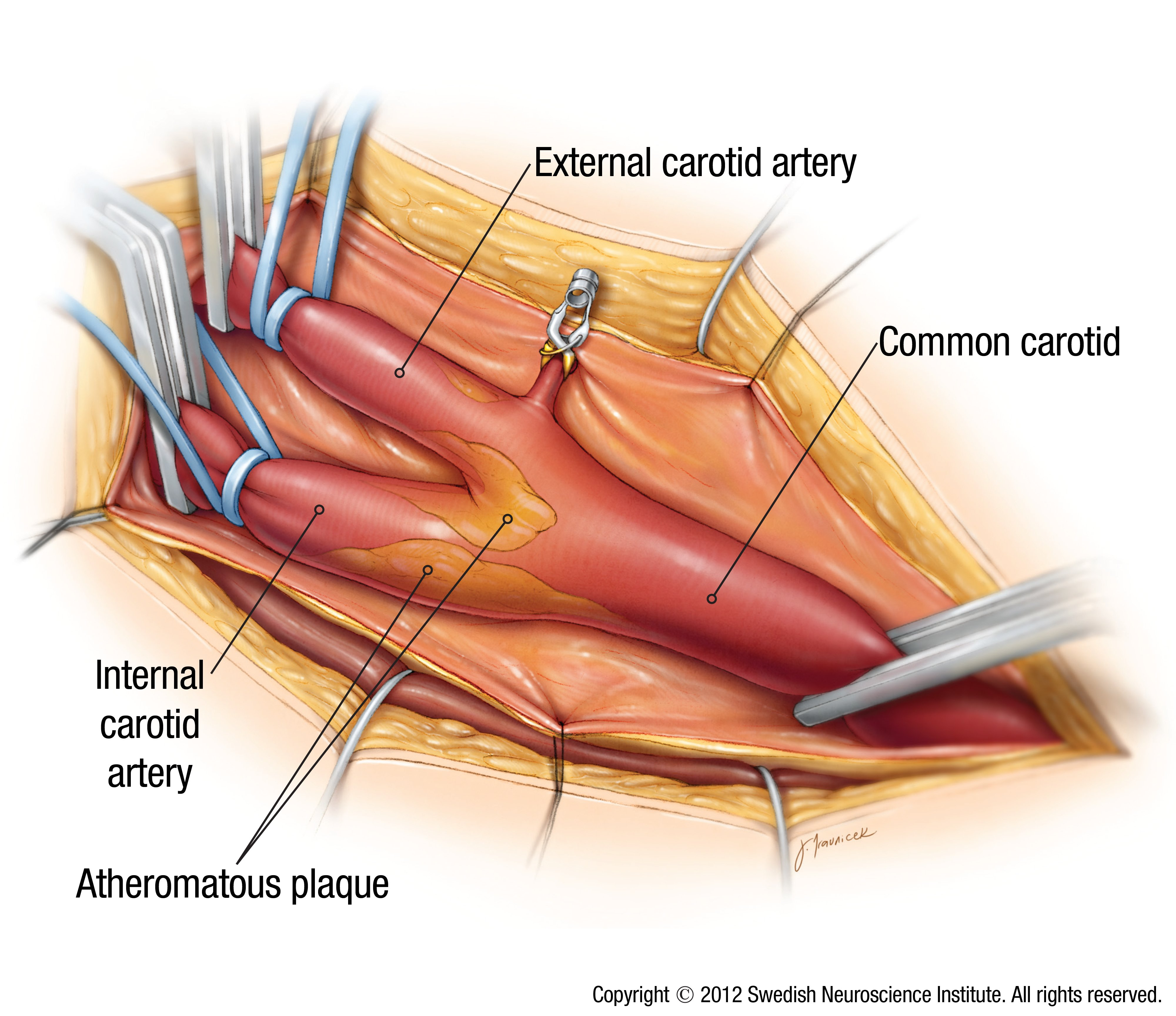 What Is Carotid Artery Disease Swedish Medical Center Seattle And