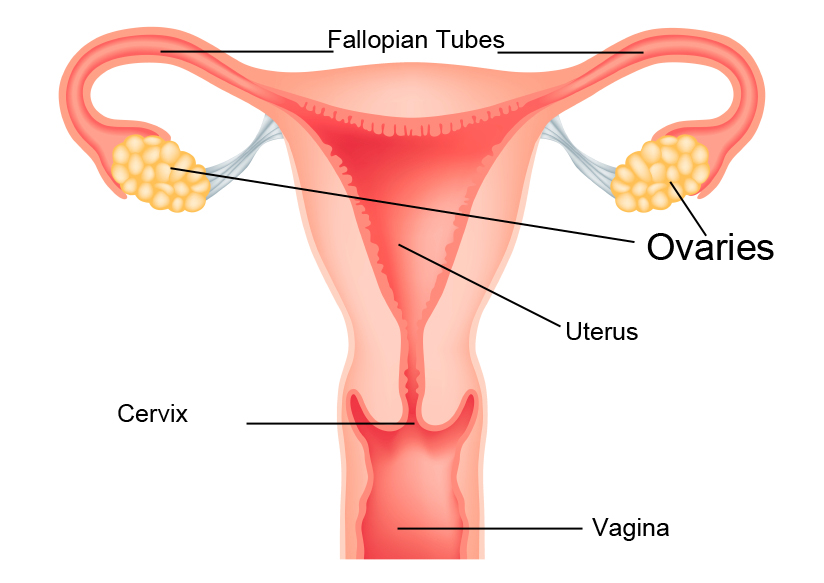 What is ovarian cancer? | Swedish Medical Center Seattle and Issaquah
