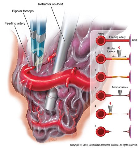 cerebral arteriovenous malformation essay Arteriovenous malformation (avm) intracranial aneurysm – localized dilation of a cerebral artery, most commonly berry shaped – usually arising from an.