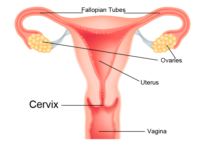 What Is Cervical Cancer Swedish Medical Center Seattle And Issaquah