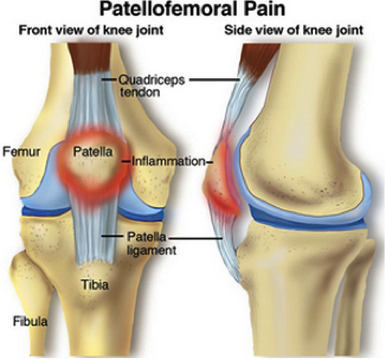 patellofemoral pain image from http://www.moveforwardpt.com/